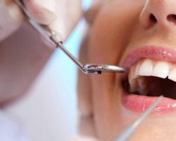 Odontoiatria, aumentano gli interventi con la tecnica chirurgia mini-invasiva per una migliore guarigione
